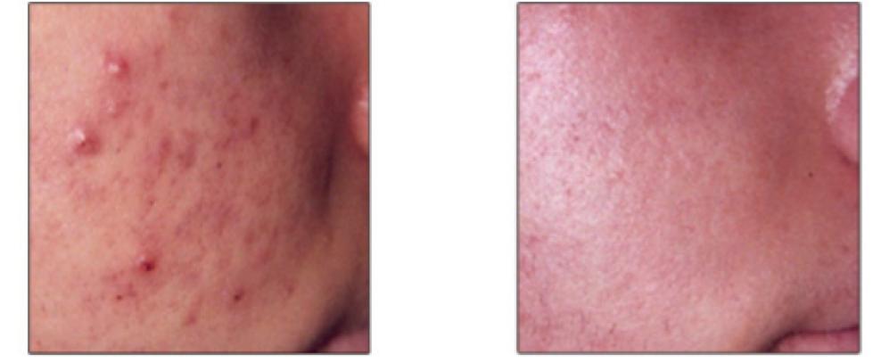 BBL-Traitement-acne