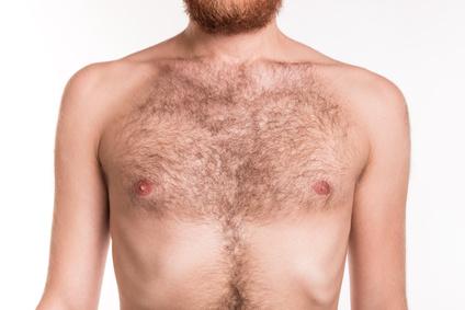 epilation par laser pour homme