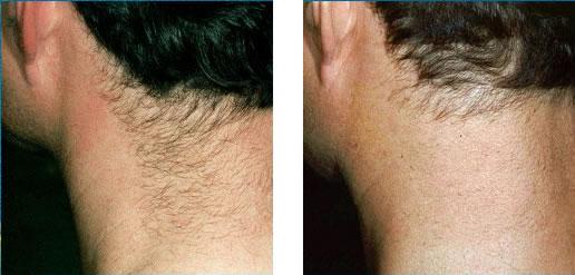 Bosses de poils du visage