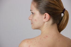 traitements contre l'acné