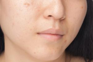 acné au visage